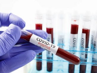 Uganda registers new positive COVID-19 cases