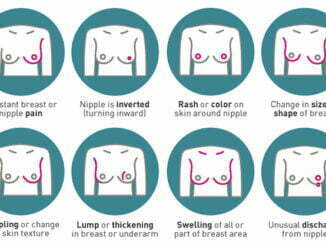 breast-cancer-signs-and-symptoms