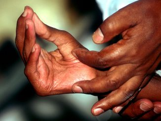 Number of new leprosy infections reducing, says Uganda's Health Ministry